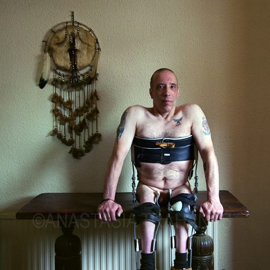 naked paraplegic man sitting on table