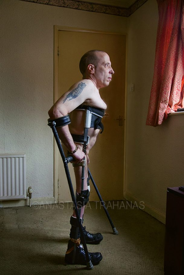 naked paraplegic man looking out the window