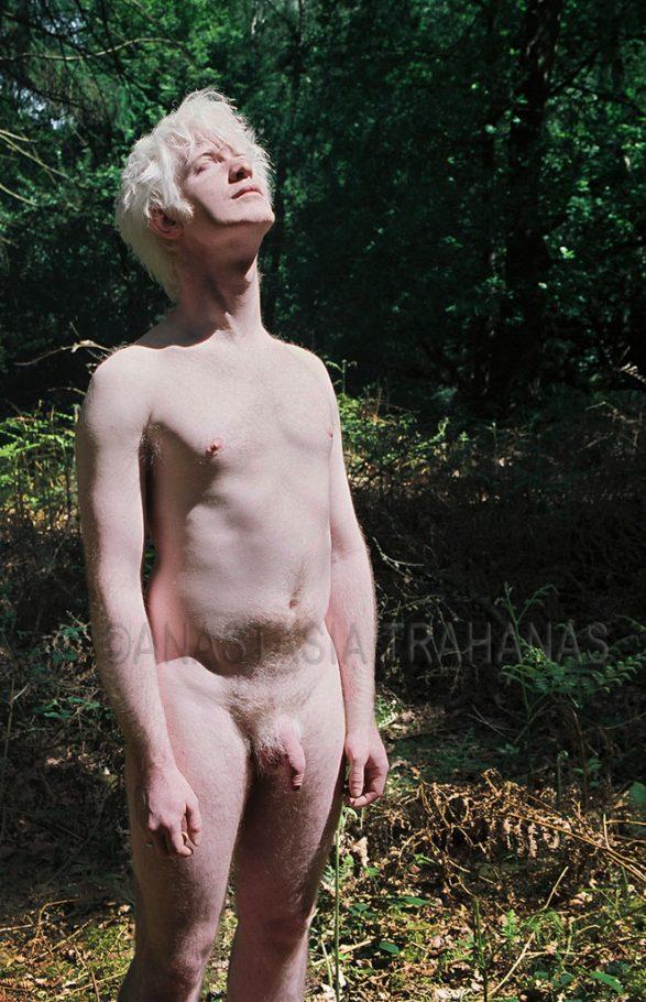 albino man soaking in the sun