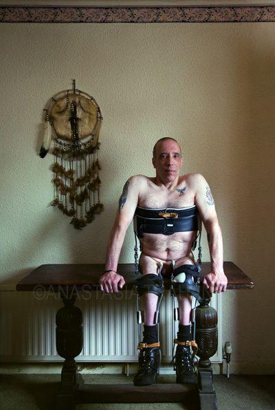 naked paraplegic man sitting on table